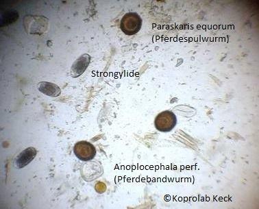 Wurmeier unter dem Mikroskop
