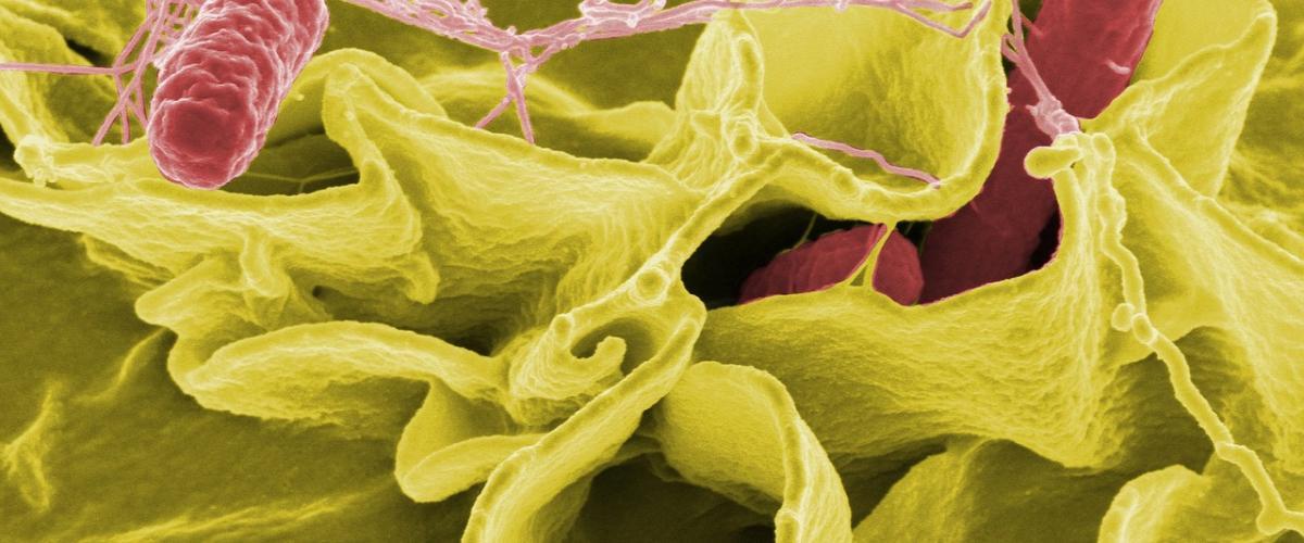 Bakterien (hier im Bild Salmonellen)